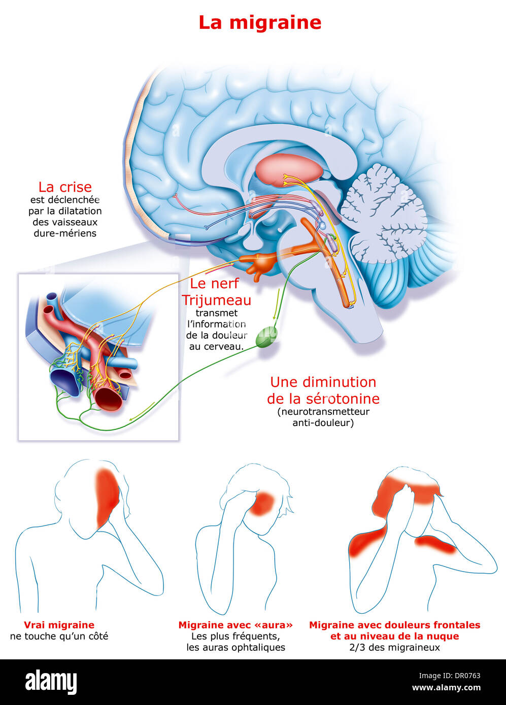 hight resolution of migraine illustration stock image