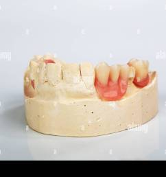 a partial denture mounted on a plaster study model and placed on a shiny gray background [ 1300 x 956 Pixel ]