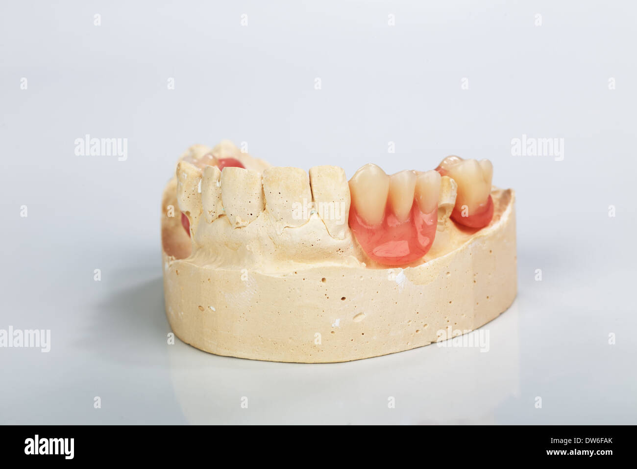 hight resolution of a partial denture mounted on a plaster study model and placed on a shiny gray background