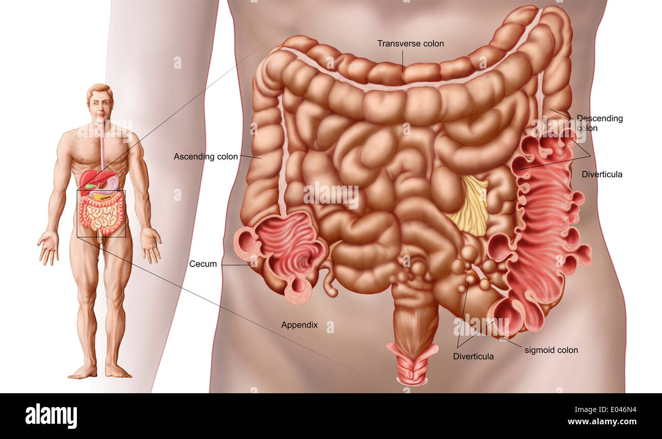 hight resolution of diverticulitis in the descending colon region of the human intestine stock image
