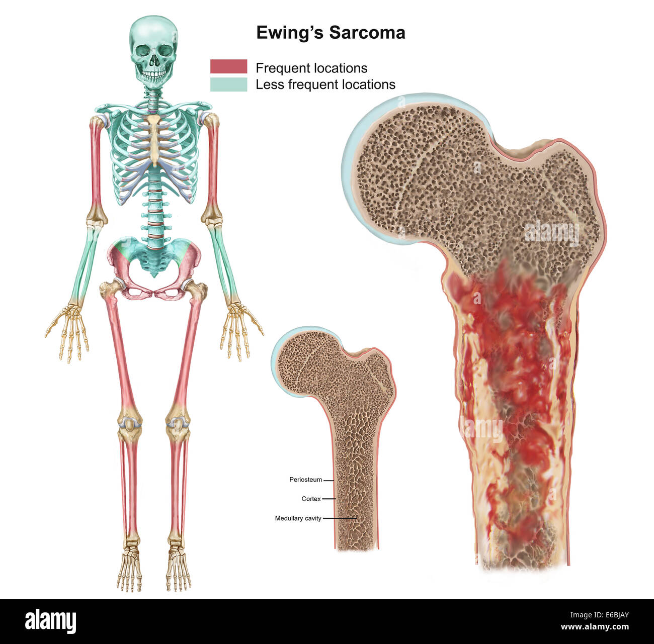 hight resolution of ewings sarcoma locations on the skeleton and detail of tumor on head of femur
