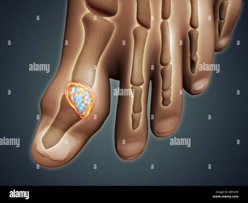 small resolution of conceptual image of gout in the big toe gout is a form of inflammatory arthritis