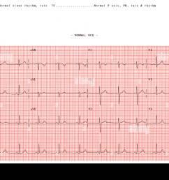 normal electrocardiogram stock image [ 1300 x 978 Pixel ]