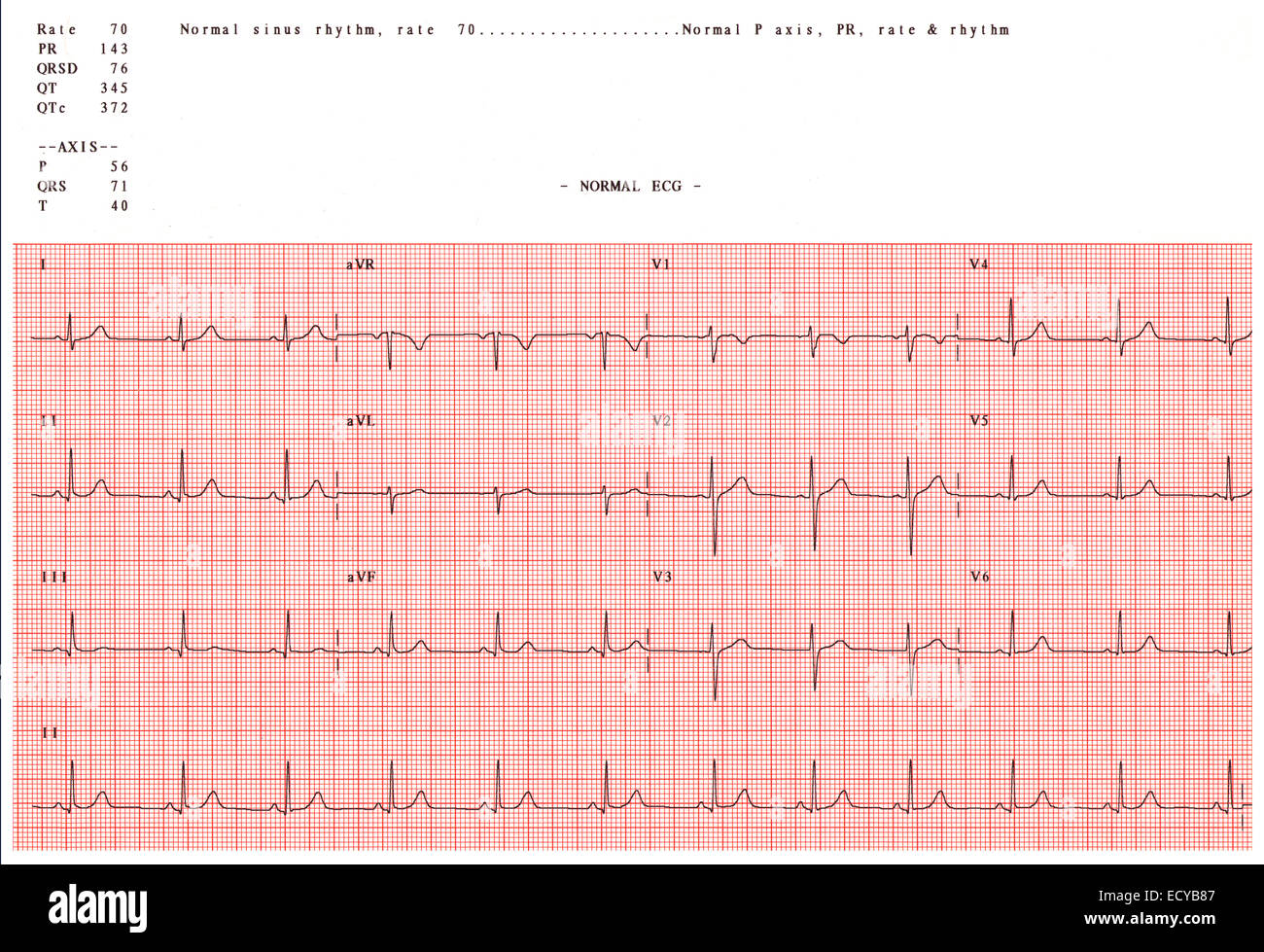 hight resolution of normal electrocardiogram stock image