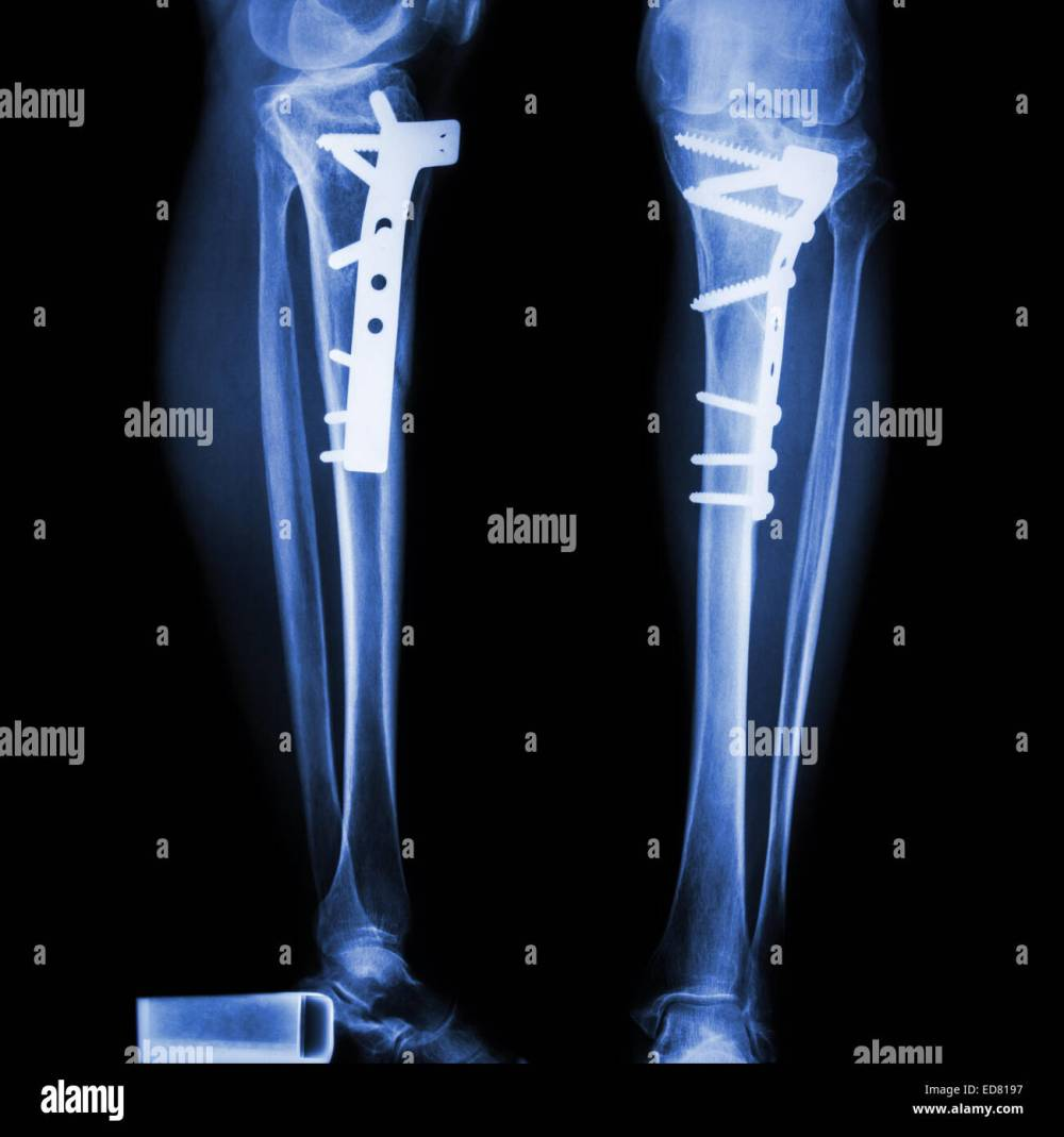 medium resolution of fracture tibia leg bone it was operated and internal fixed by plate screw