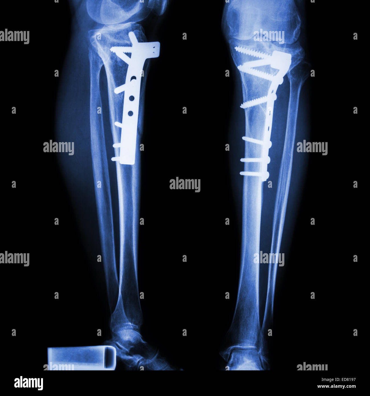 hight resolution of fracture tibia leg bone it was operated and internal fixed by plate screw