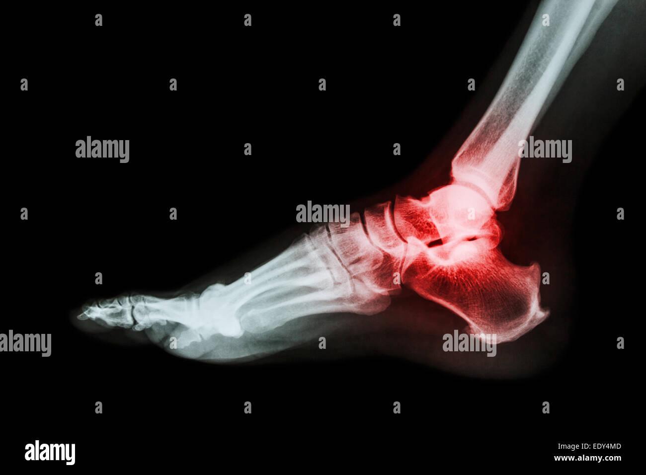 Arthritis at ankle joint (Gout  Rheumatoid arthritis ...
