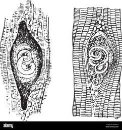 trichina spiralis vintage engraved illustration stock image [ 1300 x 1356 Pixel ]