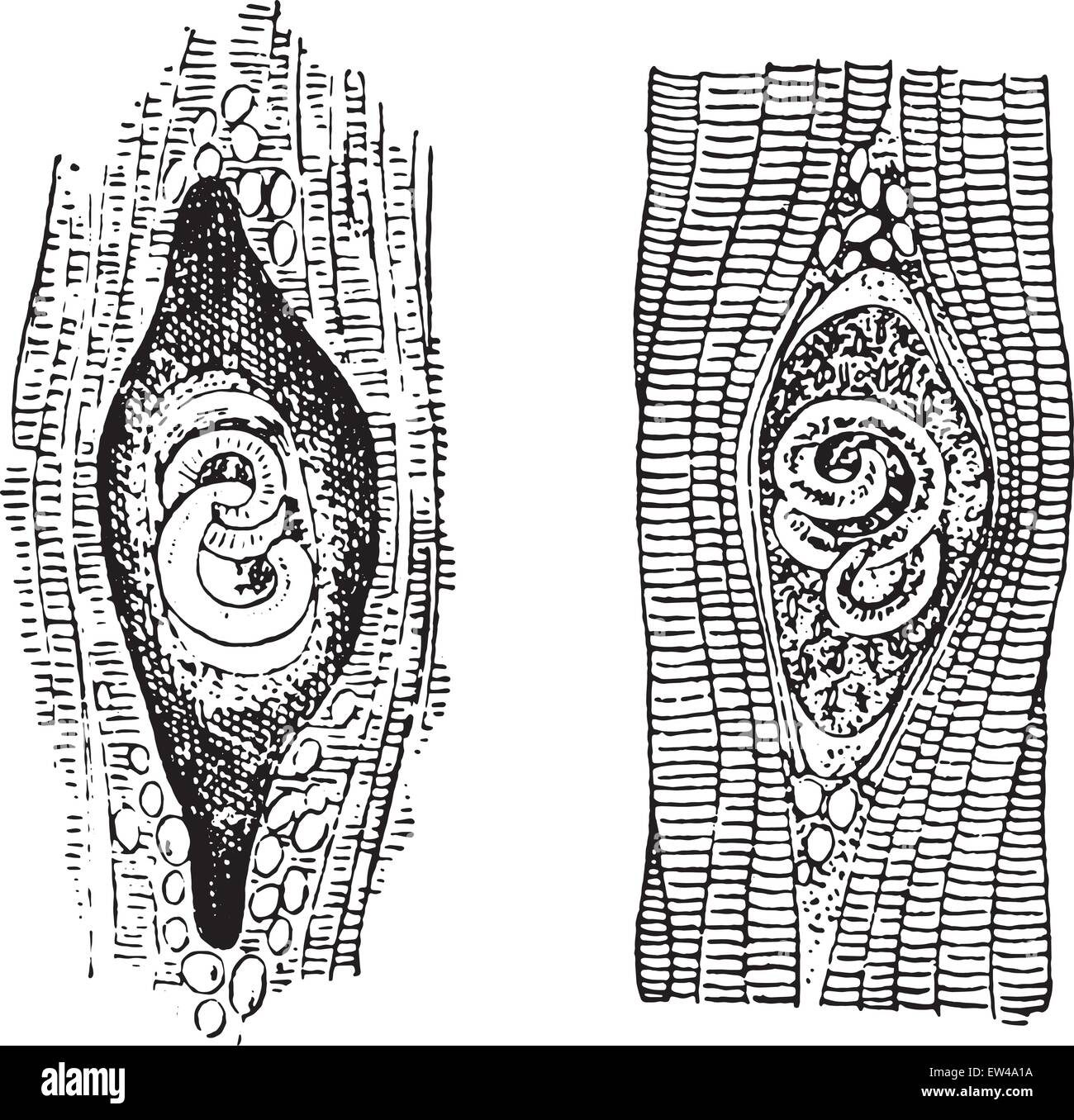 hight resolution of trichina spiralis vintage engraved illustration stock image