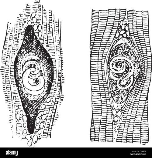 small resolution of trichina spiralis vintage engraved illustration stock image