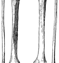 leg bones tibia and fibula vintage engraved illustration usual medicine dictionary by dr [ 860 x 1390 Pixel ]