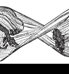 torn muscle fiber vintage engraved illustration trousset encyclopedia 1886 1891  [ 1300 x 644 Pixel ]