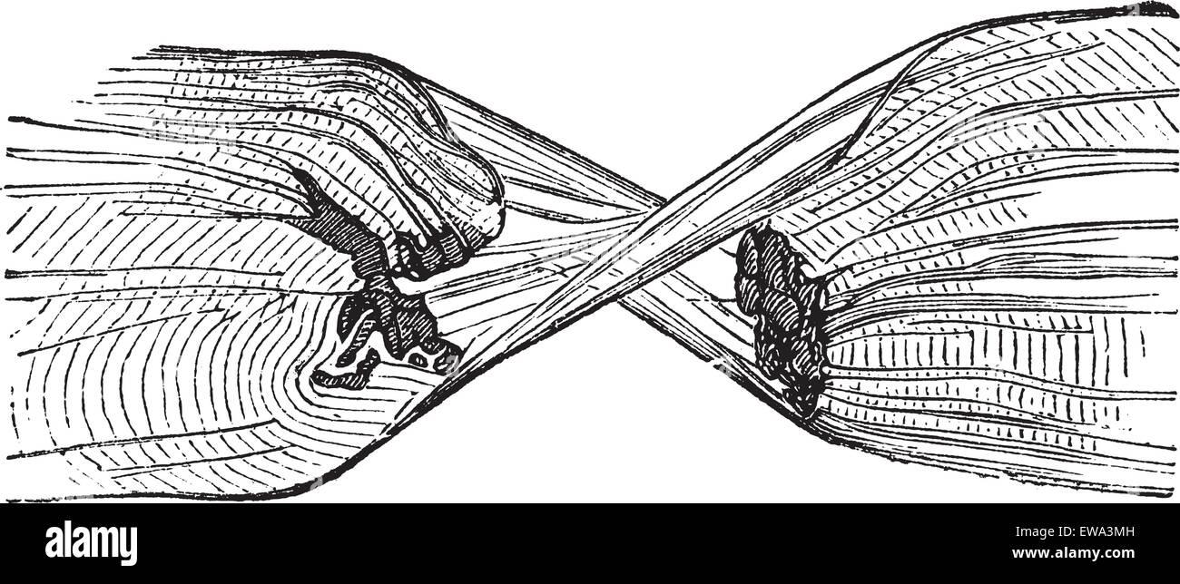 hight resolution of torn muscle fiber vintage engraved illustration trousset encyclopedia 1886 1891