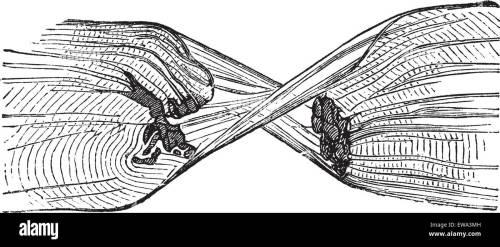 small resolution of torn muscle fiber vintage engraved illustration trousset encyclopedia 1886 1891