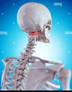 Medically accurate illustration of  painful atlas stock image also anatomical photos  images alamy rh