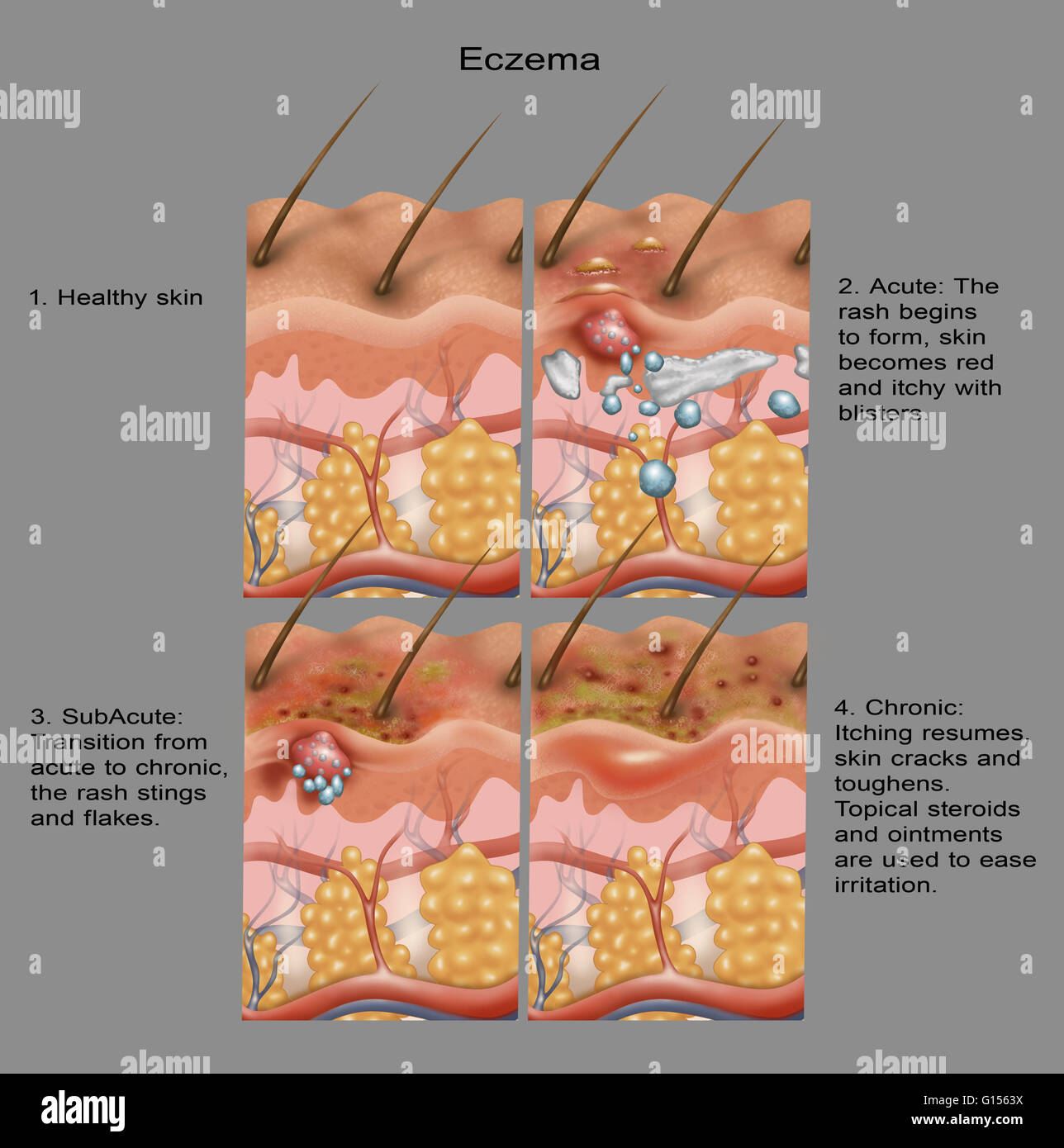 hight resolution of from top left to bottom right normal skin blisters and skin becomes itchy the rash transitions from acute to