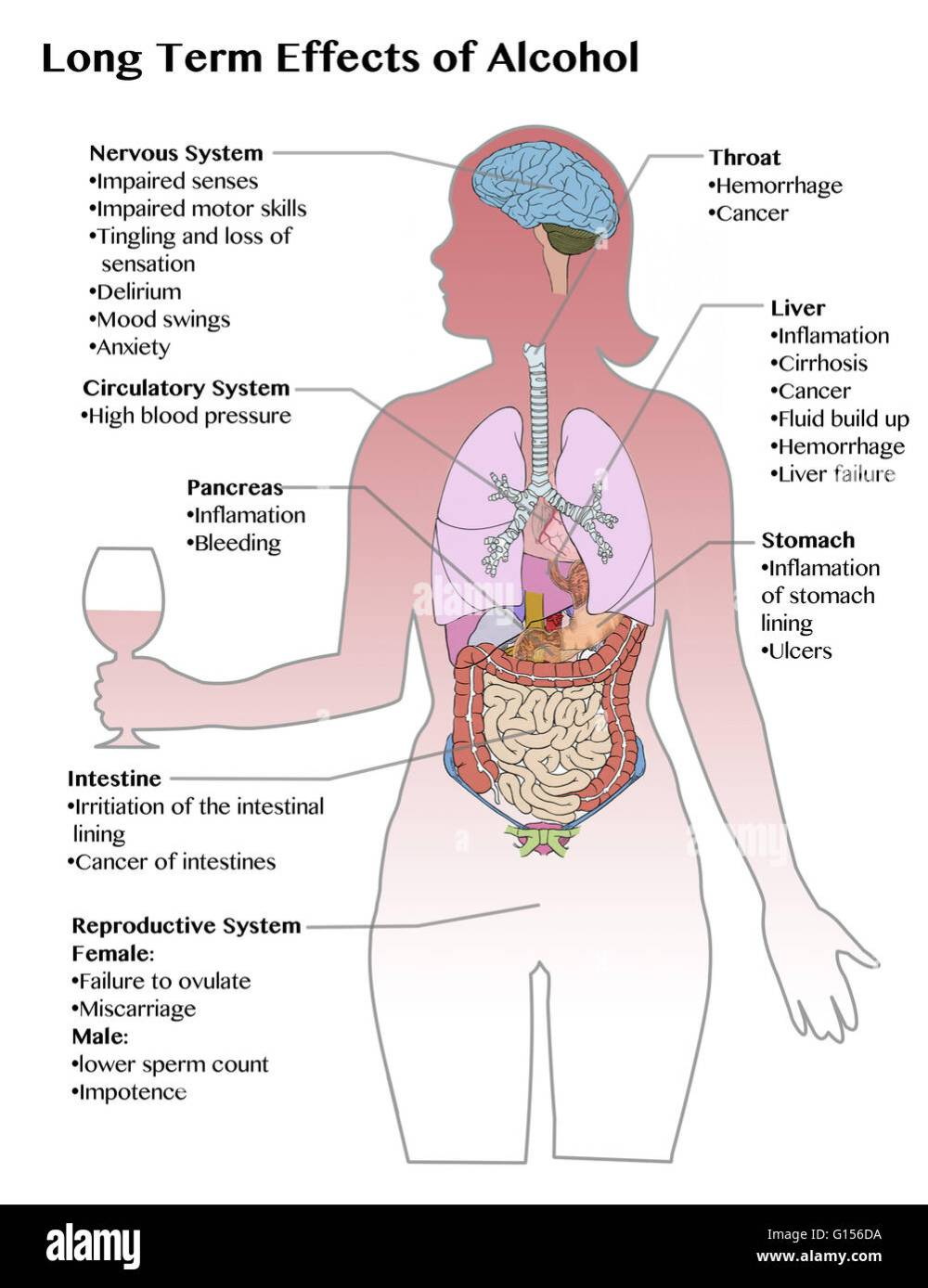 medium resolution of diagram showing the long term effects of excess alcohol consumption stock image
