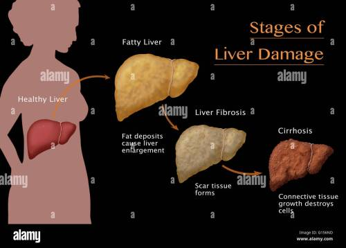 small resolution of stages of liver damage due to alcoholism first alcohol compromises the liver causing large deposits of fat to develop and enlarging the liver fatty liver