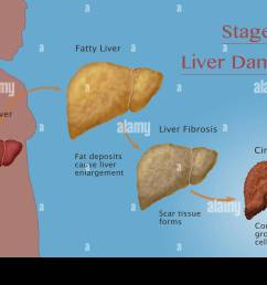stages of liver damage due to alcoholism first alcohol compromises the liver causing large deposits of fat to develop and enlarging the liver fatty liver  [ 1300 x 930 Pixel ]