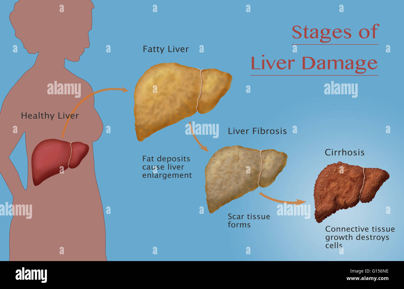 hight resolution of stages of liver damage due to alcoholism first alcohol compromises the liver causing large deposits of fat to develop and enlarging the liver fatty liver