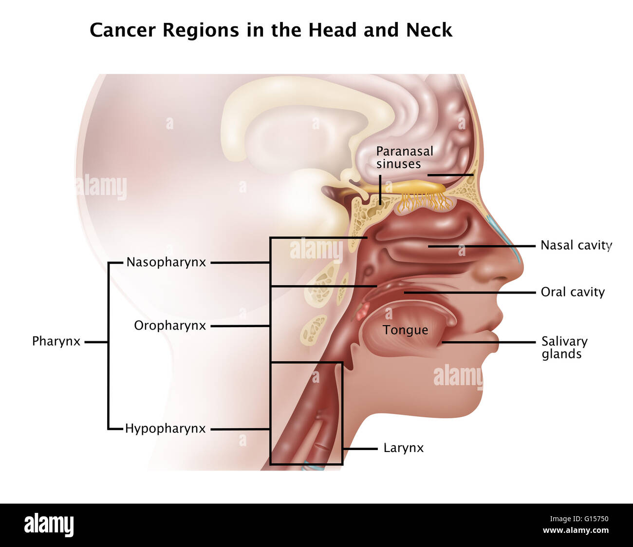 hight resolution of illustration showing the cancer regions in the head and neck which include the paranasal sinuses nasal cavity oral cavity salivary glands tongue