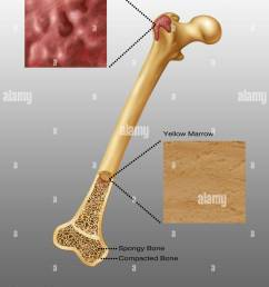 illustration of bone marrow top diagram shows red bone marrow bottom diagram shows yellow marrow spongy bone and compacted bone also visible  [ 1021 x 1390 Pixel ]
