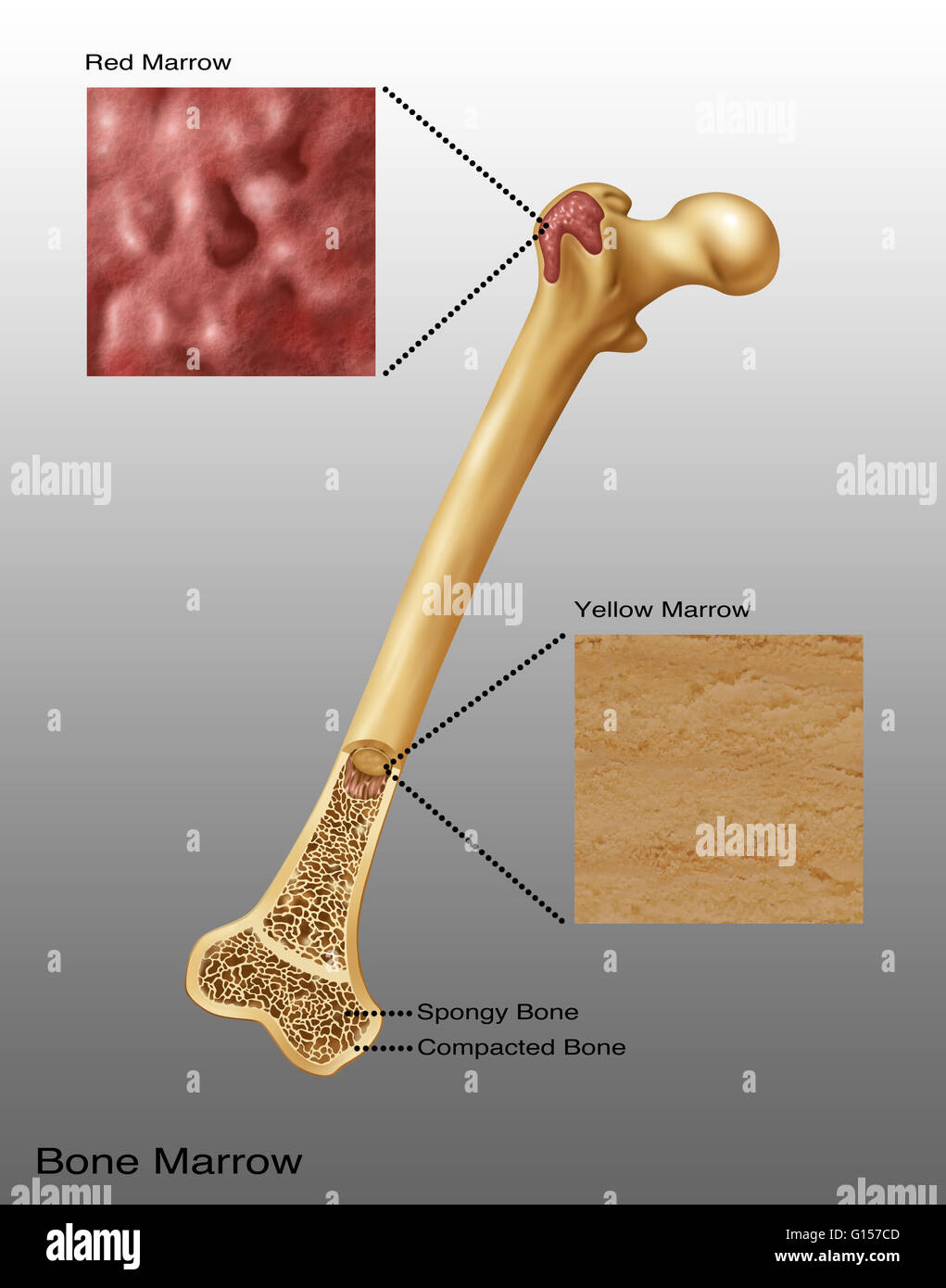 hight resolution of illustration of bone marrow top diagram shows red bone marrow bottom diagram shows yellow marrow spongy bone and compacted bone also visible