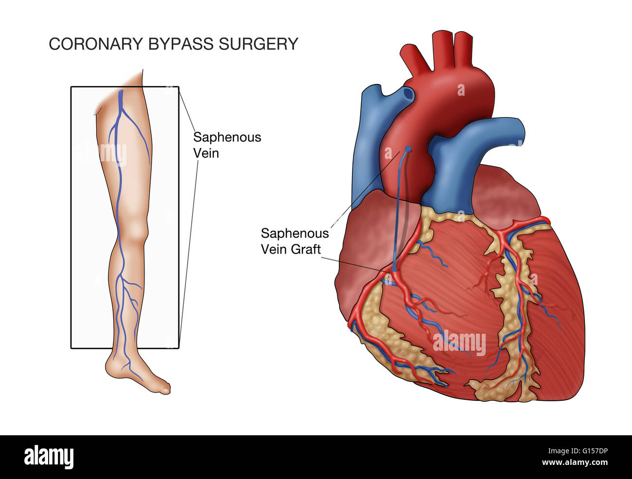 diagram of a heart bypass graft 2005 nissan altima stereo wiring coronary surgery labeled illustration vessel