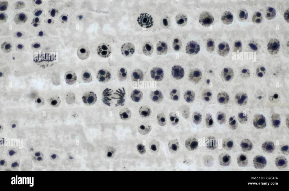 medium resolution of mitosis cell division in onion root tip brightfield photomicrograph stock image