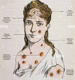 diagram to show the rash which appears in the second stage of syphilis date 1883 [ 984 x 1390 Pixel ]
