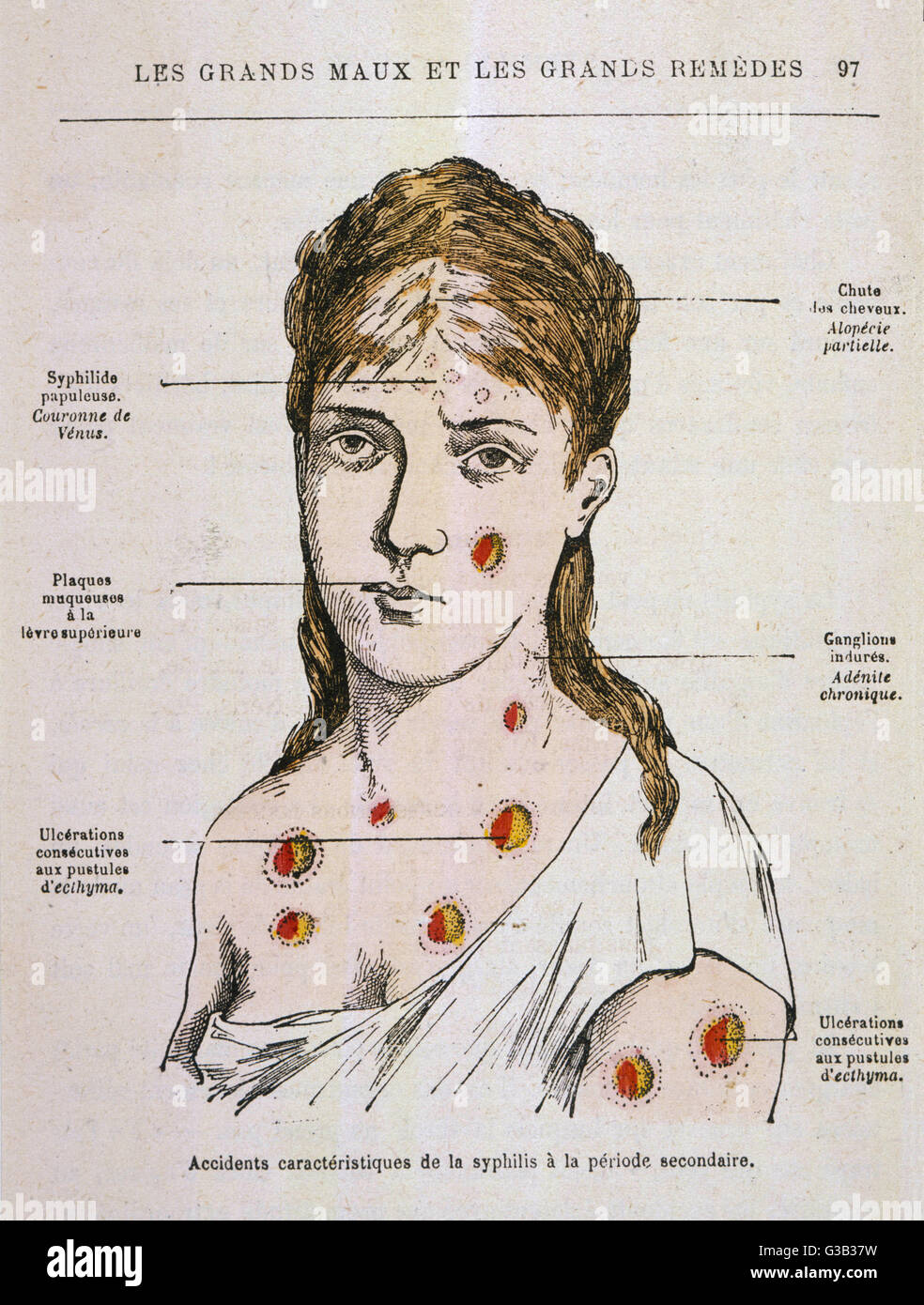 hight resolution of diagram to show the rash which appears in the second stage of syphilis date 1883