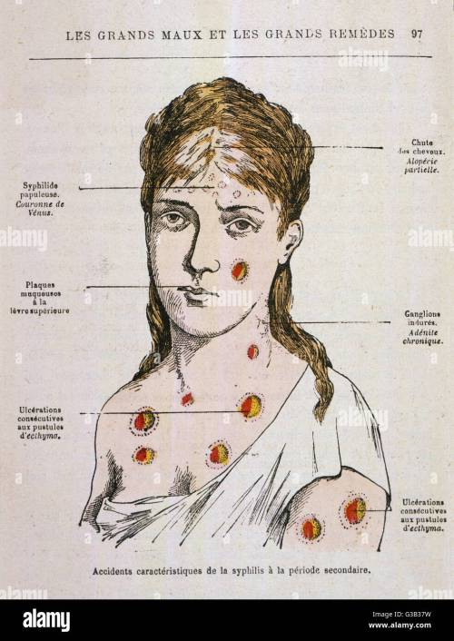 small resolution of diagram to show the rash which appears in the second stage of syphilis date 1883