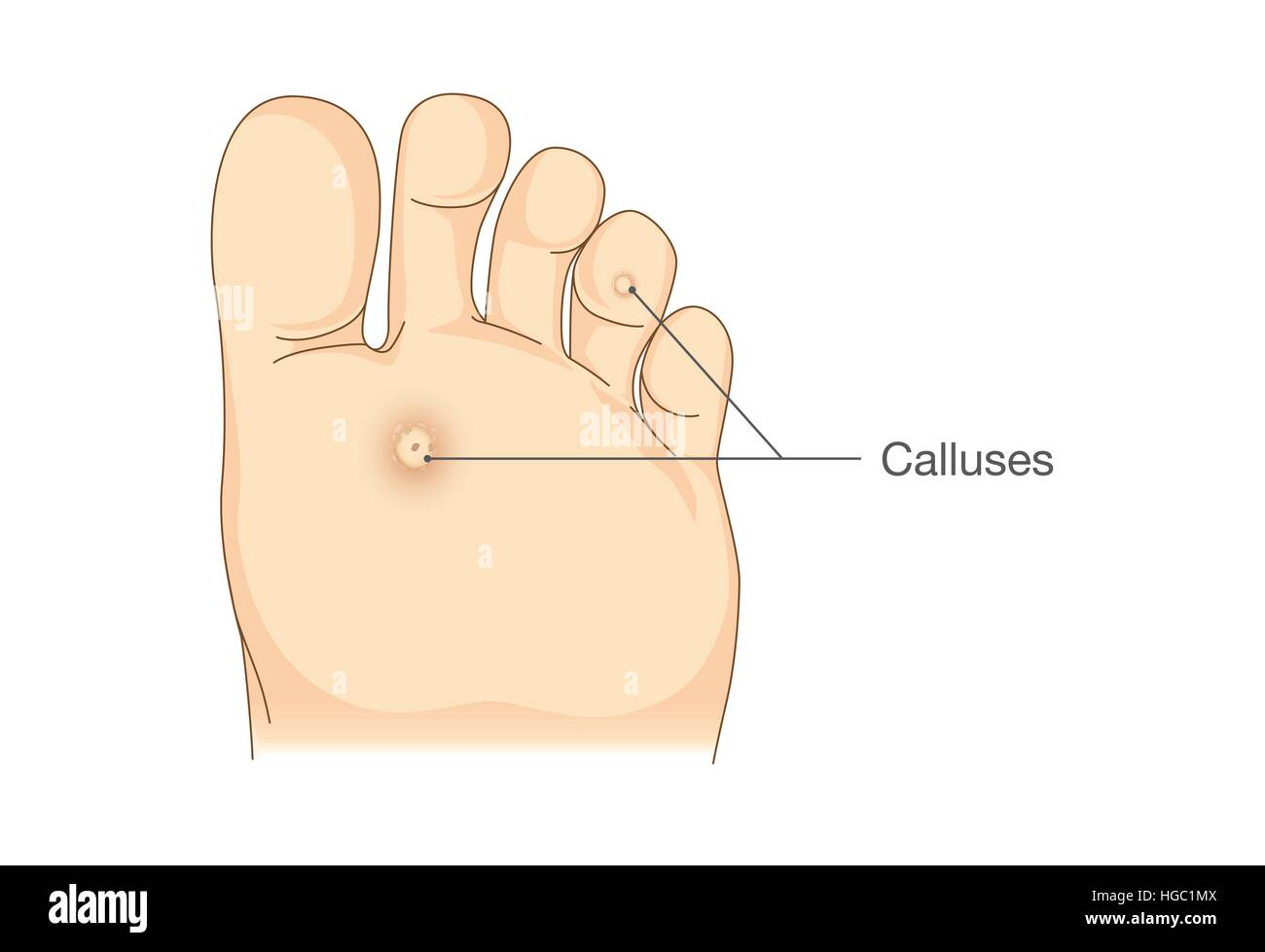 hight resolution of small circles dead skin on the bottom of soles and toes stock image