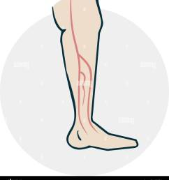 leg with varicose veins drugs icon on medical subjects illustration of a funny cartoon [ 1188 x 1390 Pixel ]