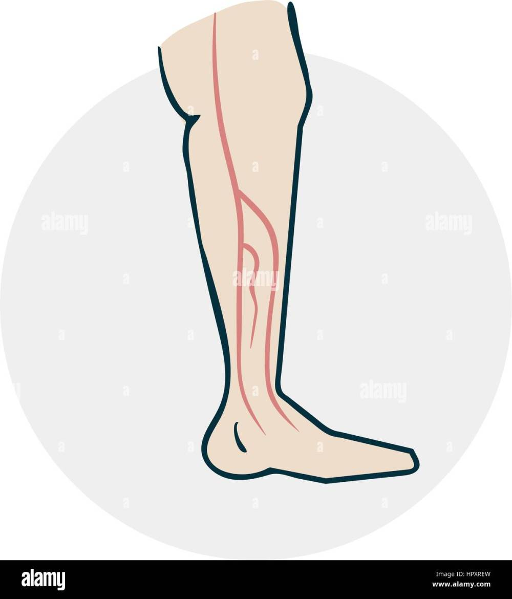 medium resolution of leg with varicose veins drugs icon on medical subjects illustration of a funny cartoon