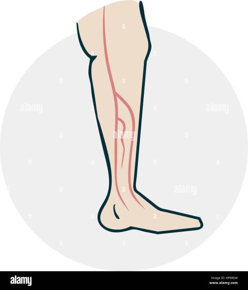 small resolution of leg with varicose veins drugs icon on medical subjects illustration of a funny cartoon