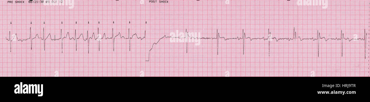 Cardioversion 2 of 2 Stock Photo: 135012551 - Alamy