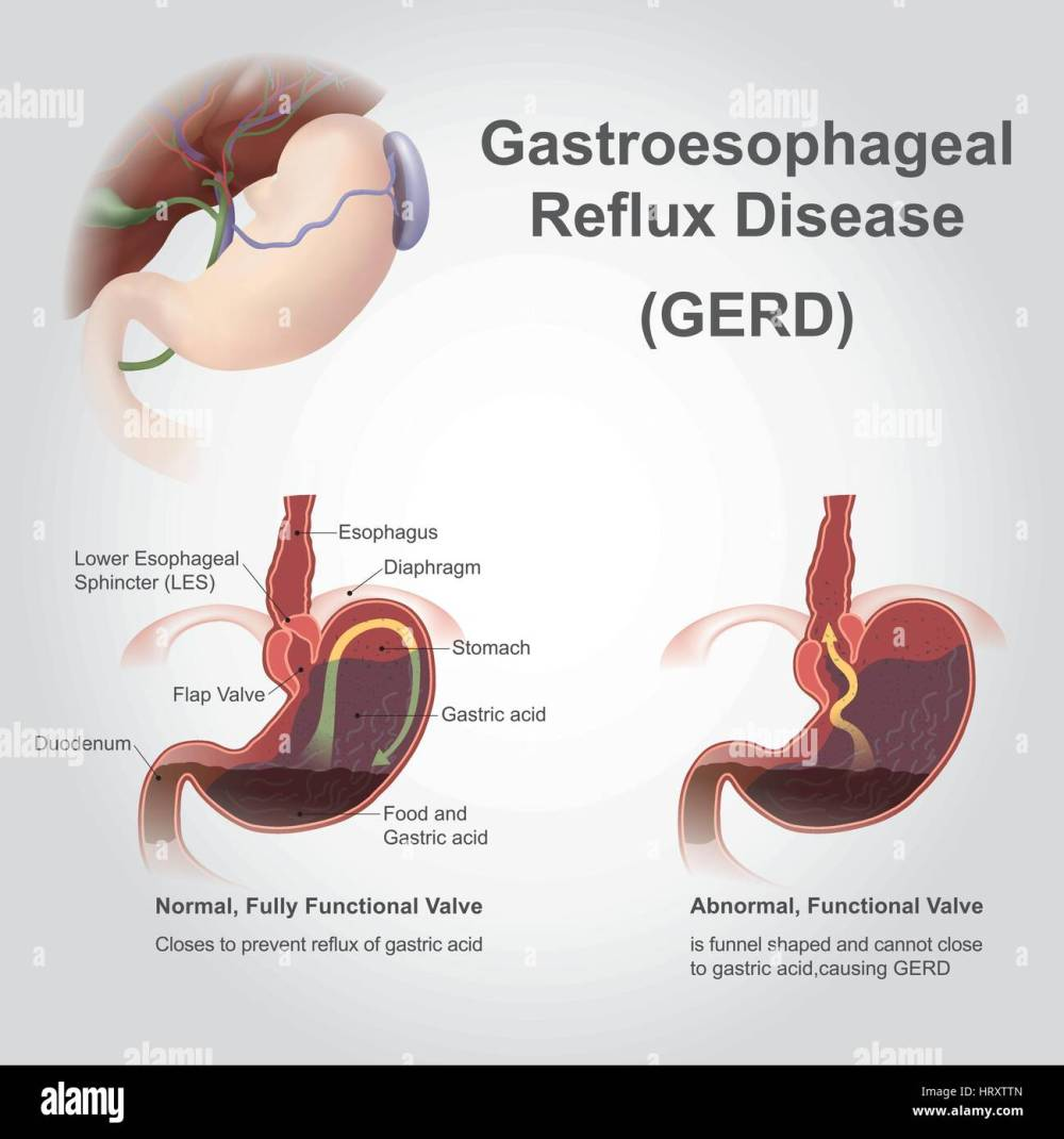 medium resolution of gastroesophageal reflux disease gerd also known as acid reflux is a long term condition where stomach contents come back up into the esophagus res