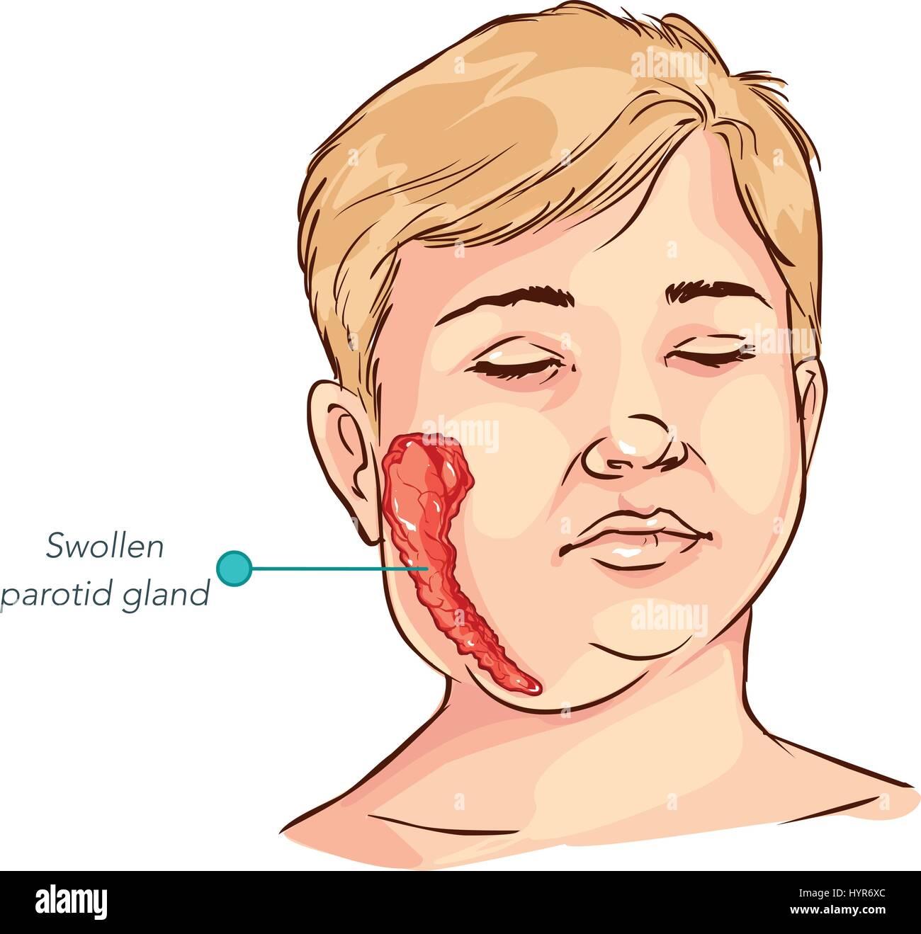 hight resolution of children salivary gland swelling vector illustration stock image