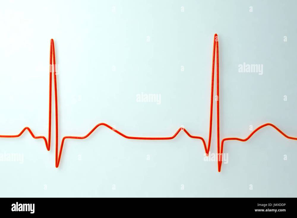 medium resolution of computer illustration of an electrocardiogram ecg showing a normal heart rate