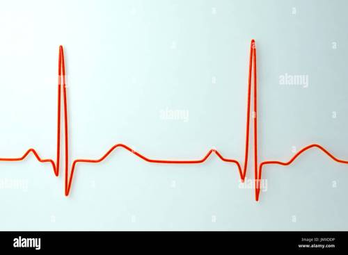 small resolution of computer illustration of an electrocardiogram ecg showing a normal heart rate