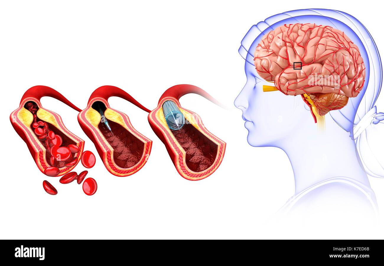 hight resolution of illustration of brain stent angioplasty to treat and prevent a stroke stock image