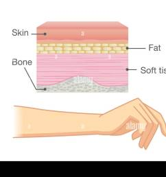 anatomy of human skin layer and arm stock image [ 1300 x 992 Pixel ]