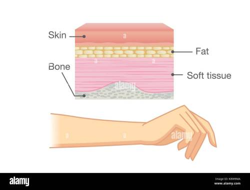 small resolution of anatomy of human skin layer and arm stock image