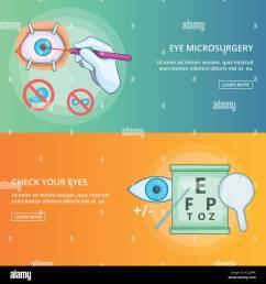 eye microsurgery banner set template cartoon style stock vector [ 1300 x 1390 Pixel ]