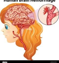 diagram showing human brain hemorrhage illustration stock image [ 1242 x 1390 Pixel ]