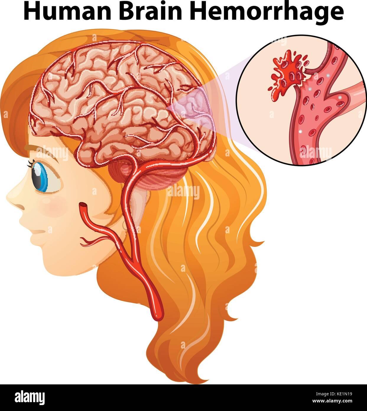 hight resolution of diagram showing human brain hemorrhage illustration stock image