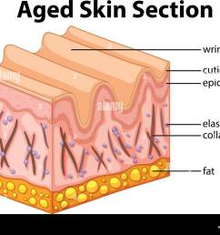 aged skin section diagram illustration stock image [ 1300 x 1012 Pixel ]