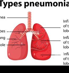 diagram showing types pneumonia illustration [ 1300 x 873 Pixel ]