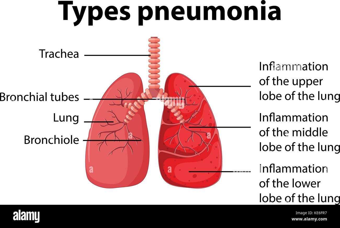 hight resolution of diagram showing types pneumonia illustration